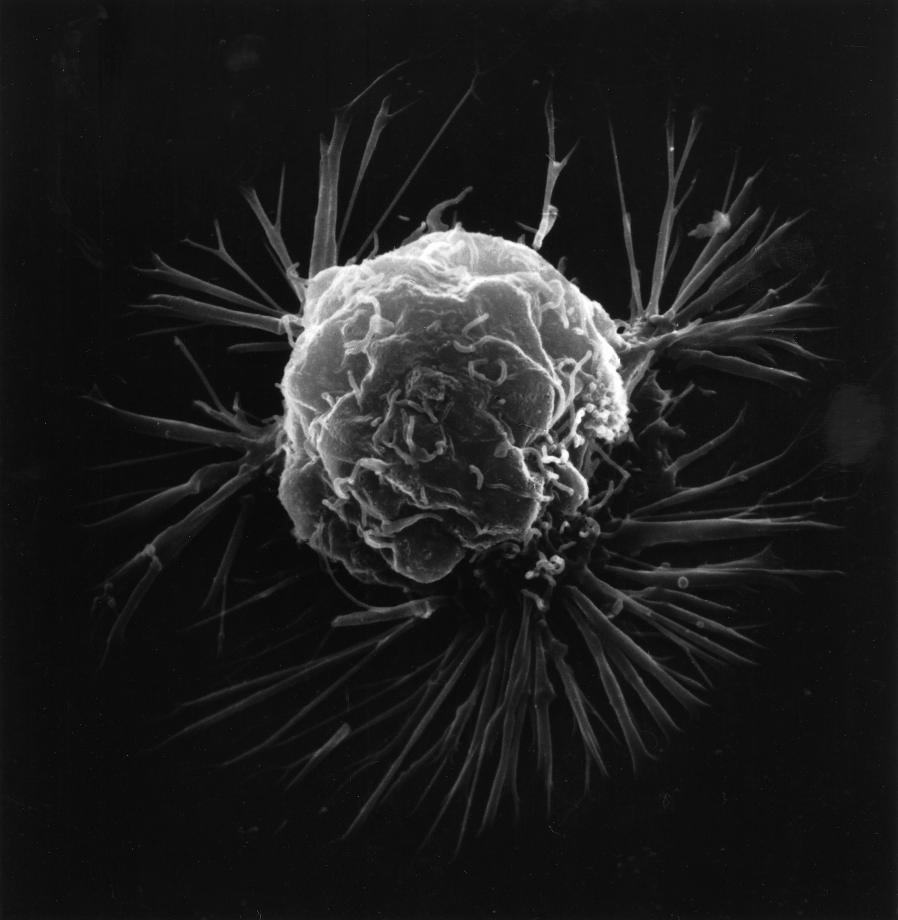 image of a breast cancer cell