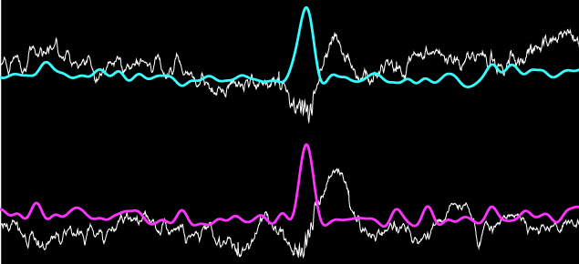 picture of coloured wave forms depicting short-wave ripples in the brain